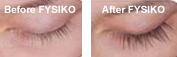 most effective eyelash growth serum